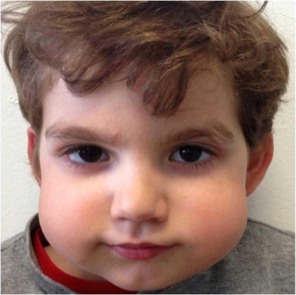 Заболевание паротит у взрослых. симптомы и лечение паротита у детей острый серозный паротит - лечение