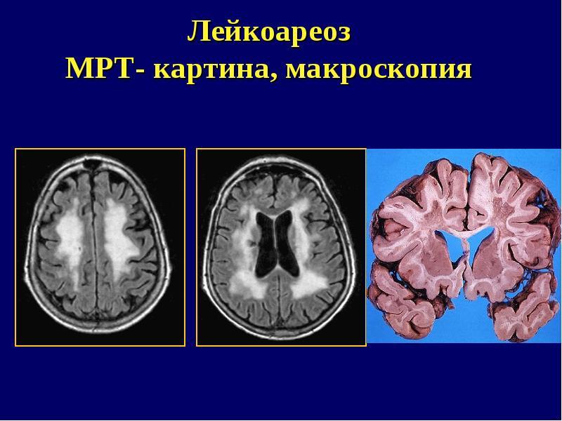 Лейкоареоз головного мозга: что это такое и как лечить