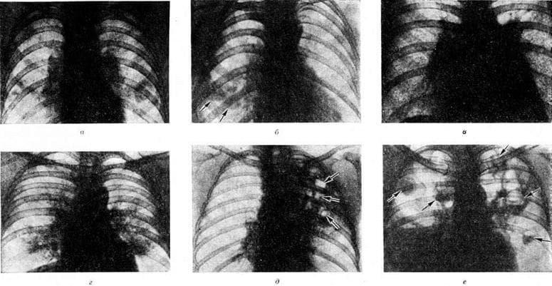Правосторонняя полисегментарная пневмония - лор-заболевания