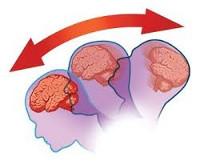 Сотрясение мозга – признаки и лечение в домашних условиях