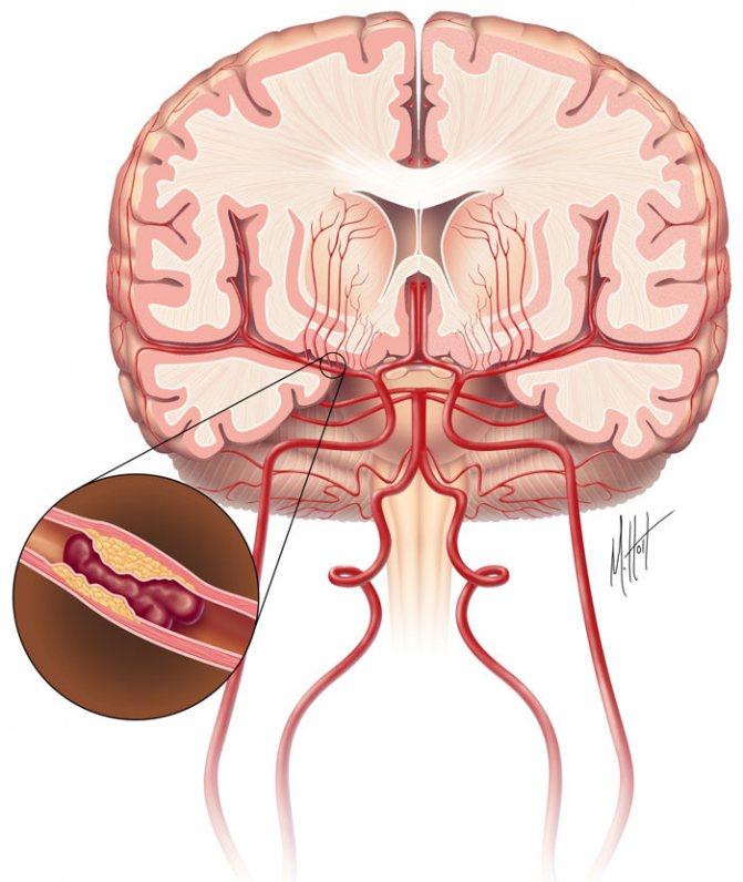 Что такое инфаркт головного мозга, его распространенные симптомы и последствия, реабилитация
