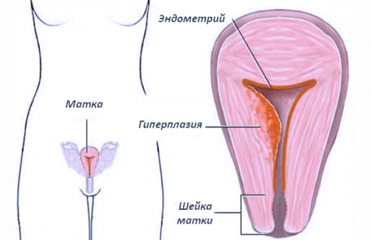 Гиперплазия эндометрия в менопаузе: лечение, симптомы, виды