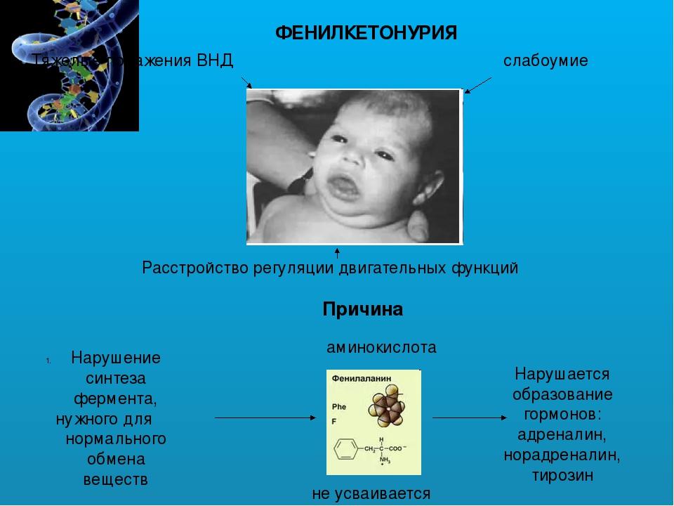 Фенилкетонурия – симптомы и лечение, фото и видео