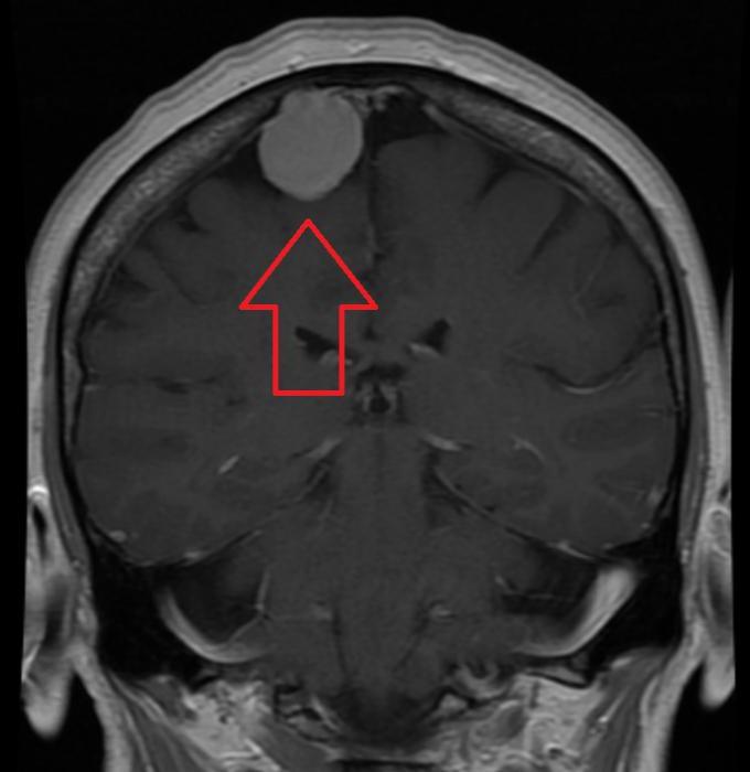 Лобная менингиома: утешителен ли прогноз?
