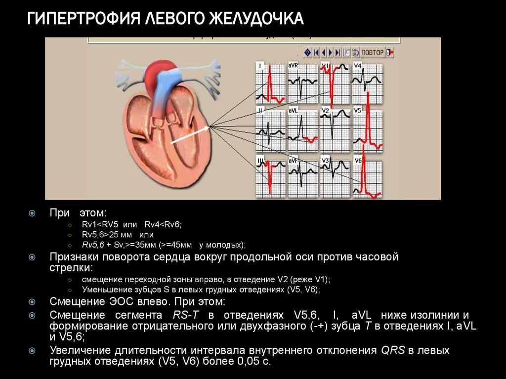 Кардиомегалия что это — сердце — сердце