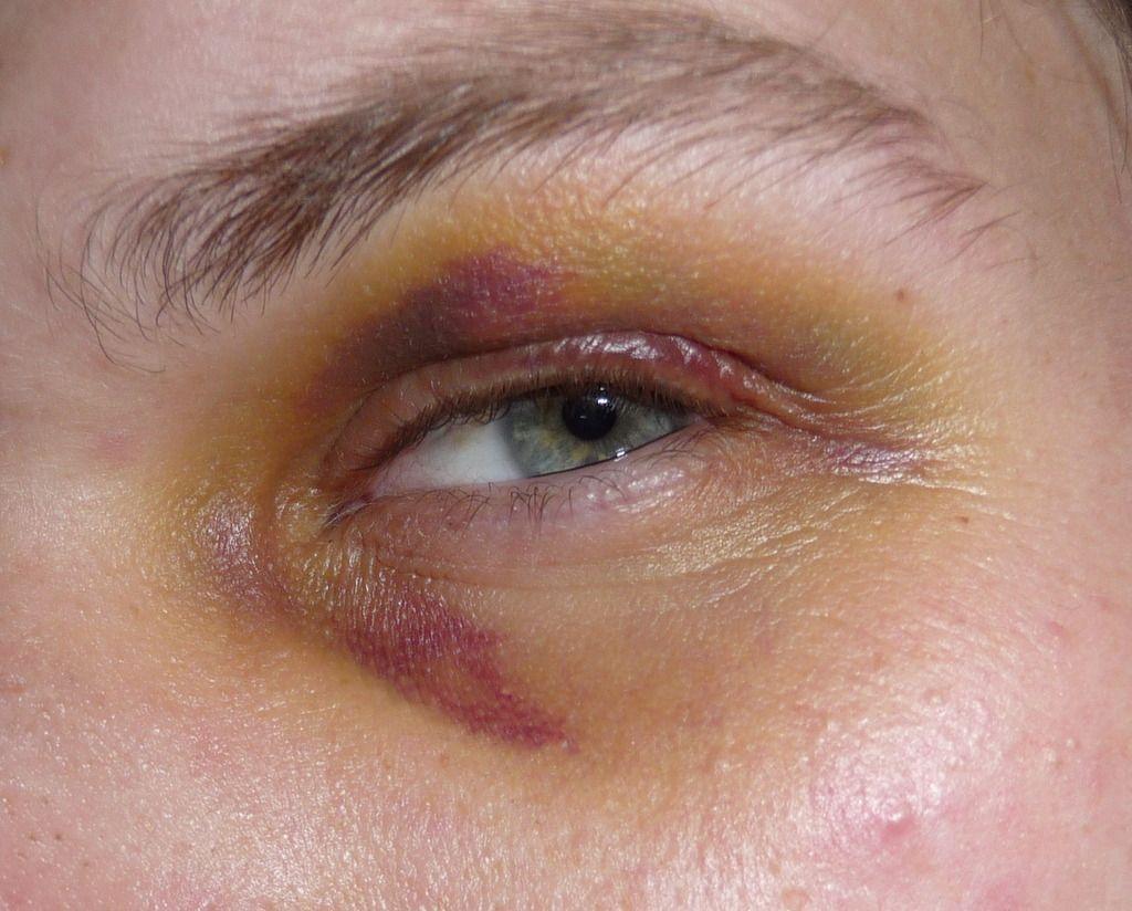 Горный чистотел - показания к применению и целебные свойства, противопоказания и побочные эффекты