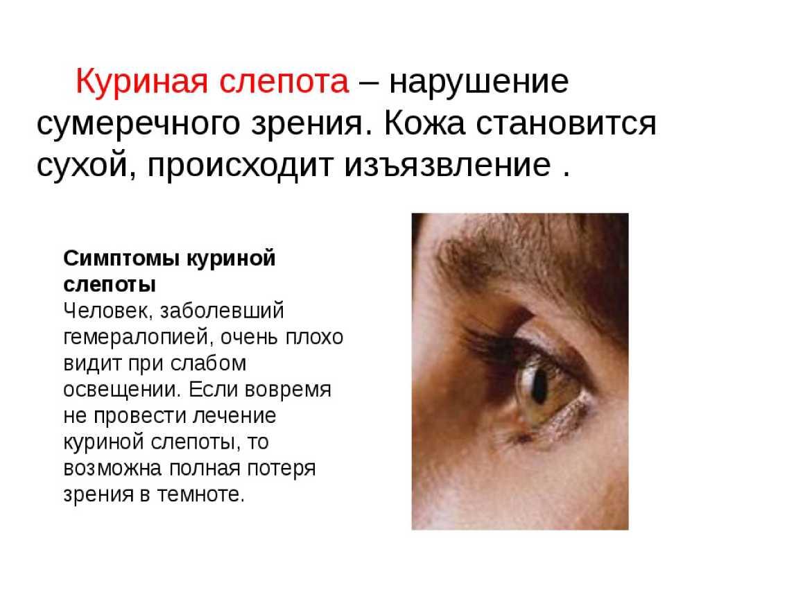 От чего возникает куриная слепота. куриная слепота   здоровье человека