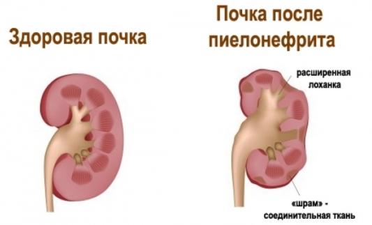 Что такое тубулоинтерстициальный нефрит (острый, хронический): причины, симптомы и лечение болезни у мужчин