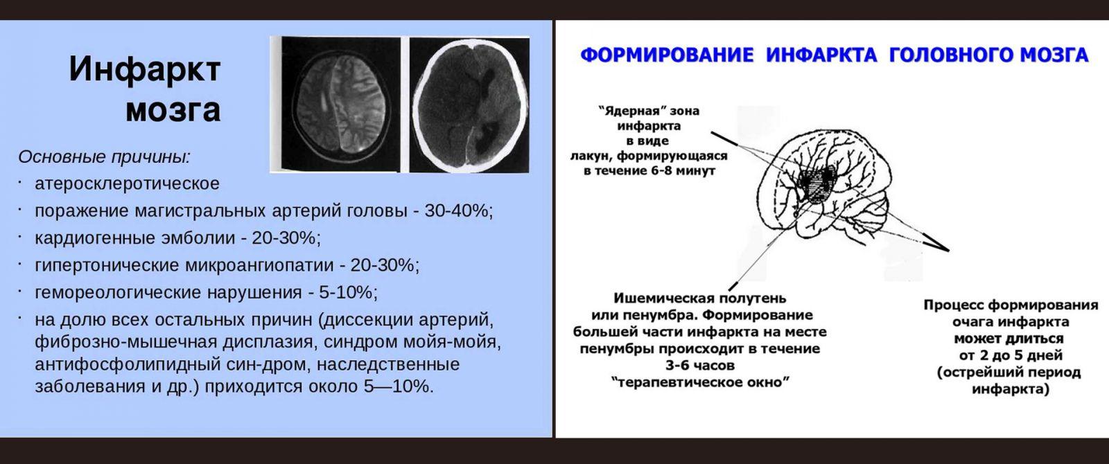Инфаркт головного мозга: что это такое, чем отличается от инсульта