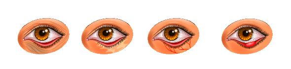 От чего появляется ячмень на глазу и как его лечить, почему появляется ячмень на глазу | медицинский портал spacehealth