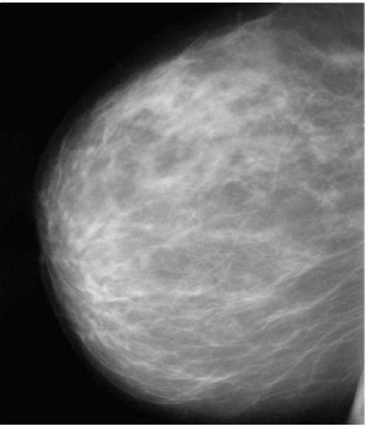 Фиброзные изменения молочной железы: признаки и лечение — портал о заболеваниях груди