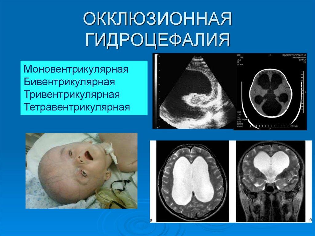 Гидроцефалия головного мозга: причины, симптомы и диагностика. лечение гидроцефалии в москве
