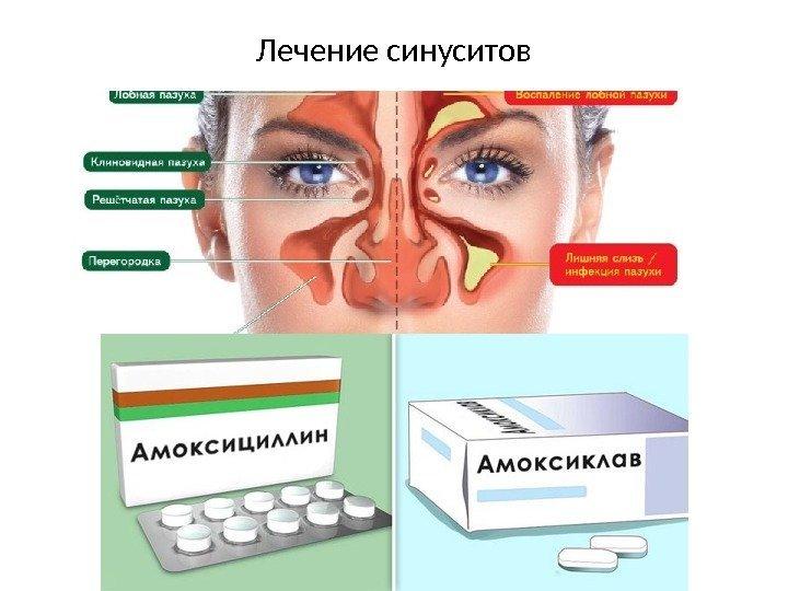 Синусит: симптомы и лечение в домашних условиях у взрослых