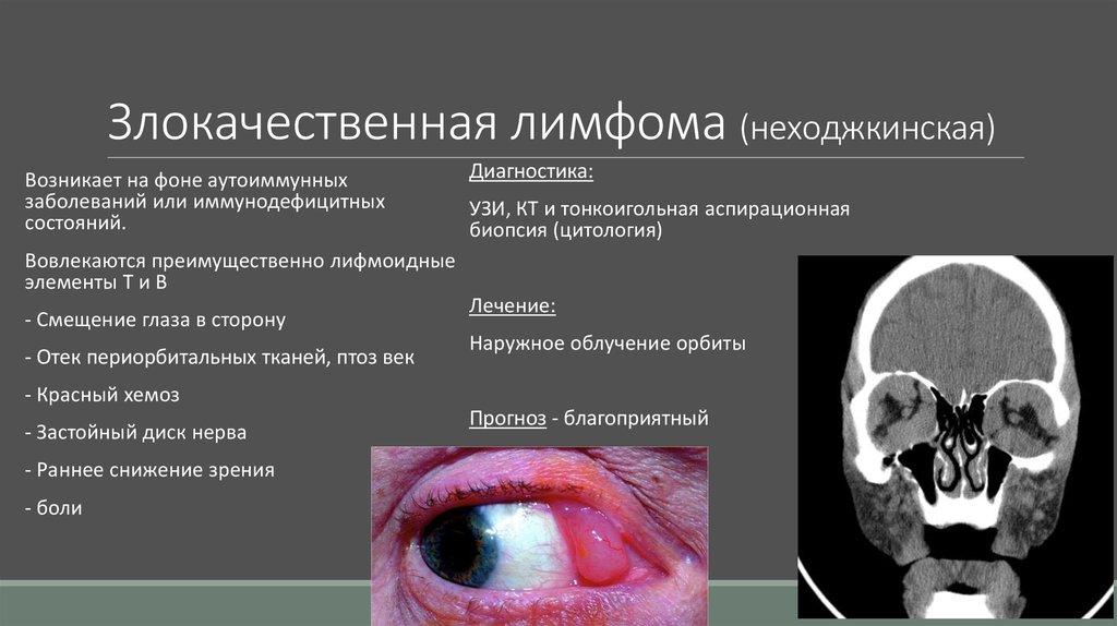Неходжкинская лимфома, лечение, причины, симптомы,  профилактика. , лечение, причины, симптомы,  профилактика.