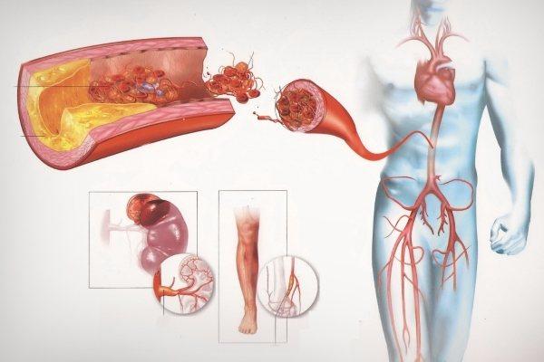 Атеросклероз аорты: причины, характерные симптомы, стадии и методы лечения
