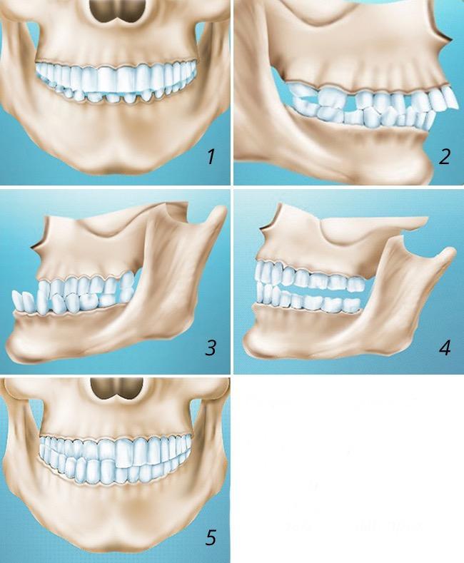 Правильный и неправильный прикус: каким он должен быть - много зубов