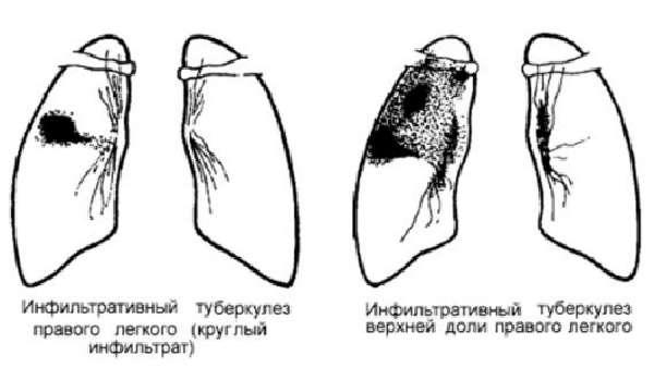 Инфильтрат после укола - что это такое и как его диагностировать и лечить