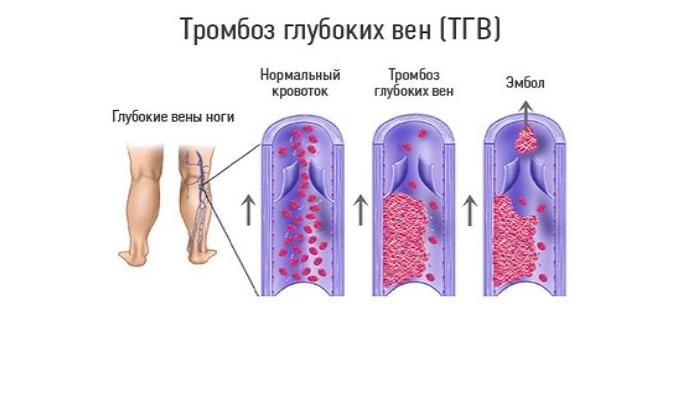 Диагноз тромбофлебит: основные симптомы и лечение тромбофлебита