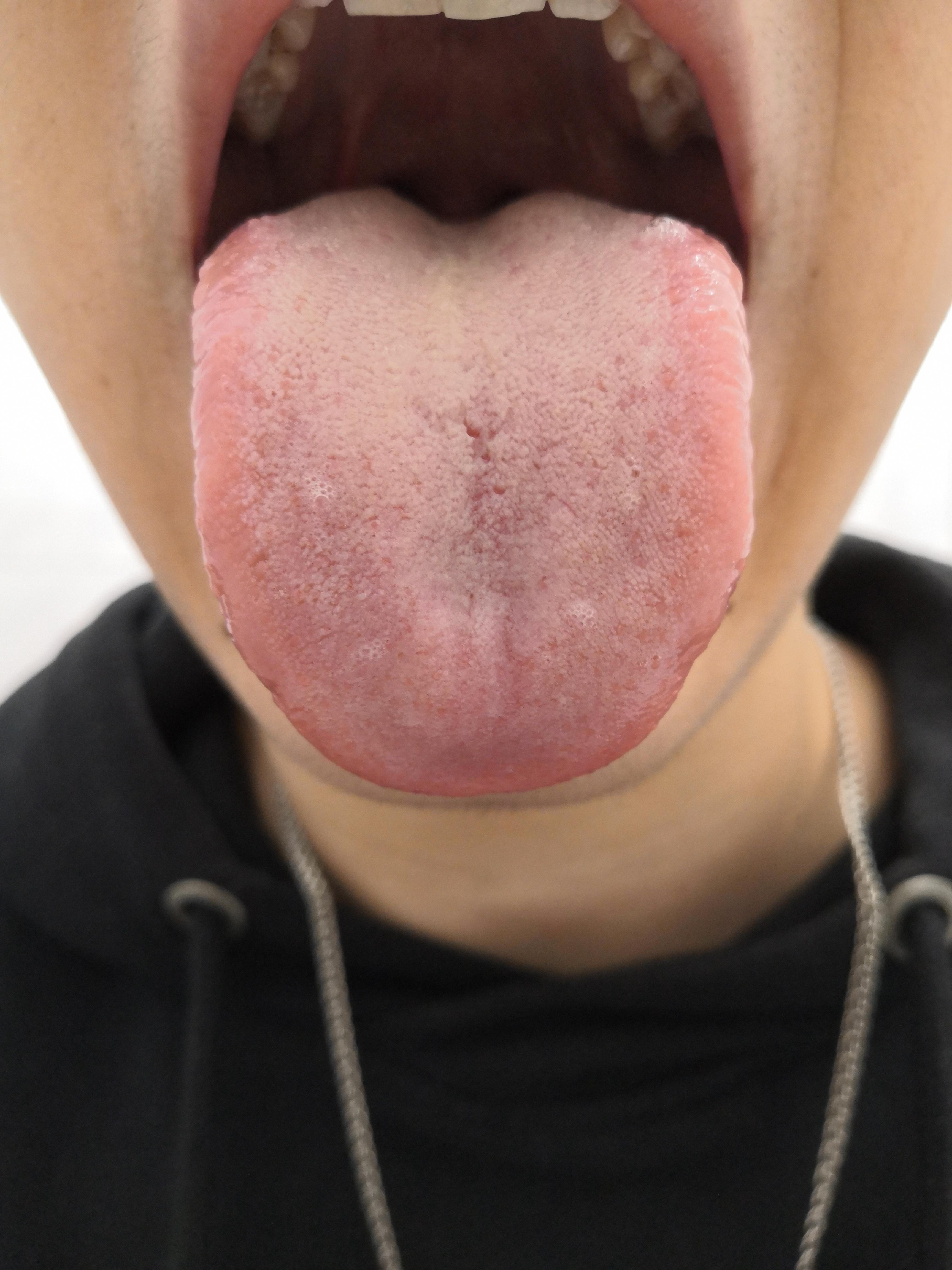 Типун на языке лечение в домашних условиях - стоматолог