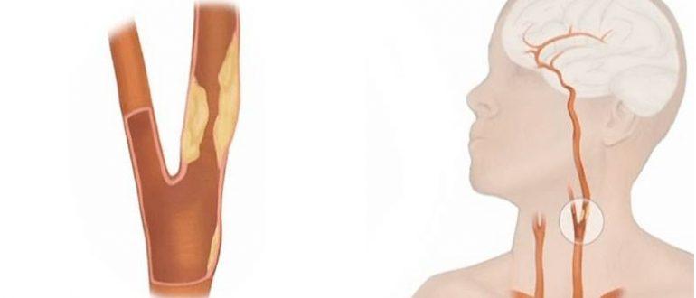 Атеросклероз брахиоцефальных артерий (бца): что это, симптомы, причины и лечение