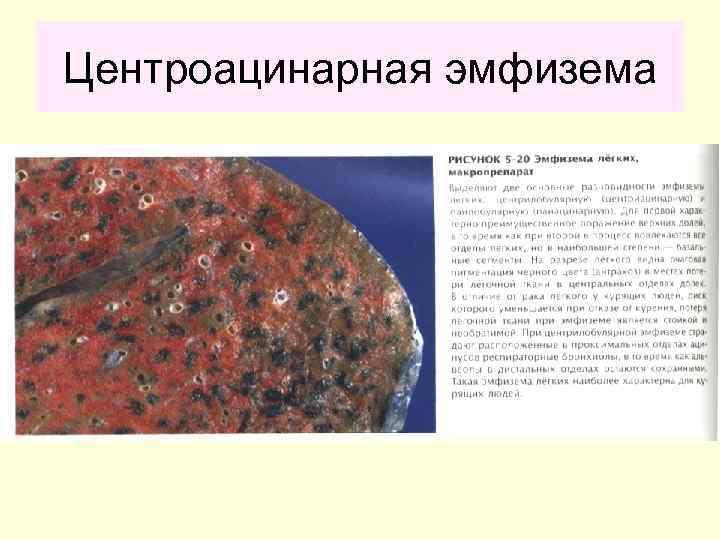 Буллезная болезнь легких: причины, симптомы, лечение