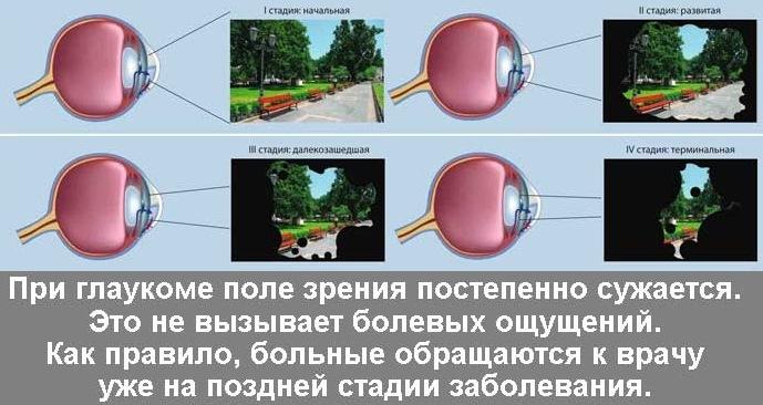 От чего возникает заболевание глаукома: что это такое, ее причины и последствия