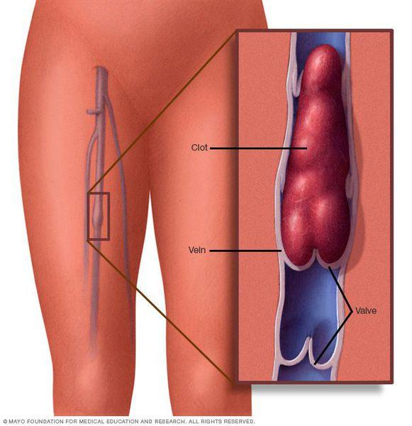 Тромбоз нижних конечностей: симптомы, фото и лечение
