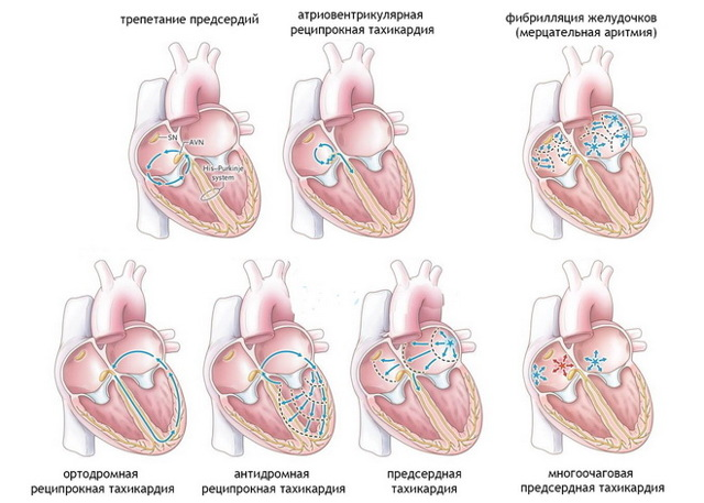 Тахикардия причины симптомы диагностика лечение