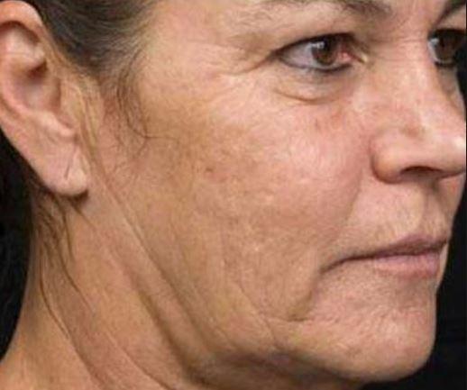 Птоз лица не добавляет красоты. как бороться с неизбежным дефектом: косметические процедуры в салоне и дома