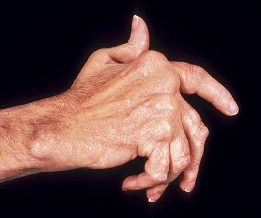 Обзор полиартрита пальцев рук: виды, симптомы и лечение
