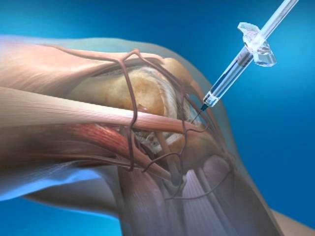 Стернальная пункция (пункция костного мозга из грудины): показания, проведение, расшифровка, последствия