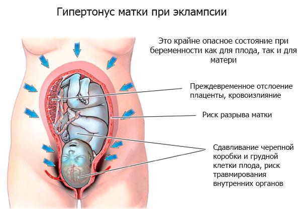 Что такое тонус. тонус при беременности: симптомы и особенности