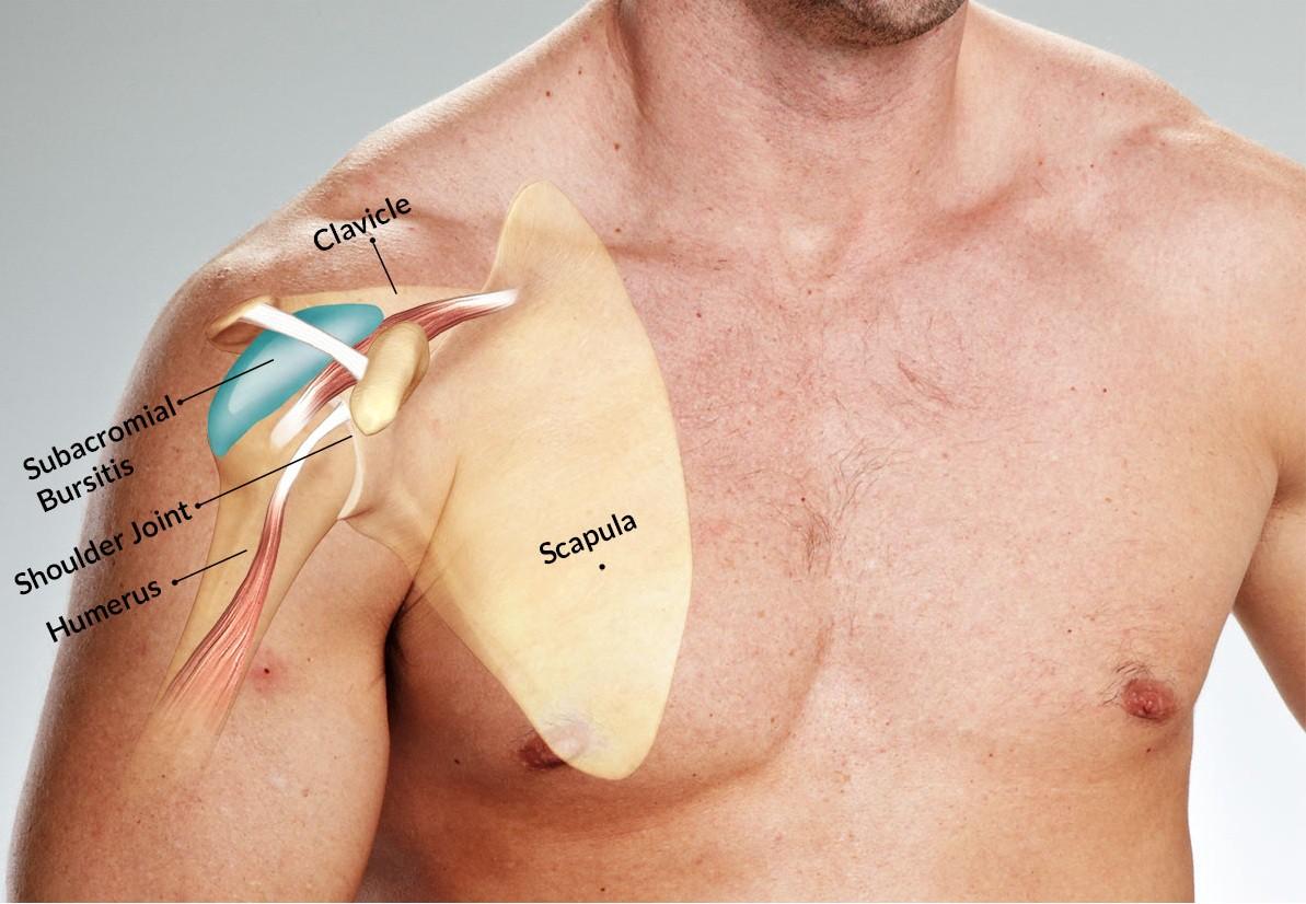 Как лечить бурсит плечевого сустава — симптомы и причины возникновения