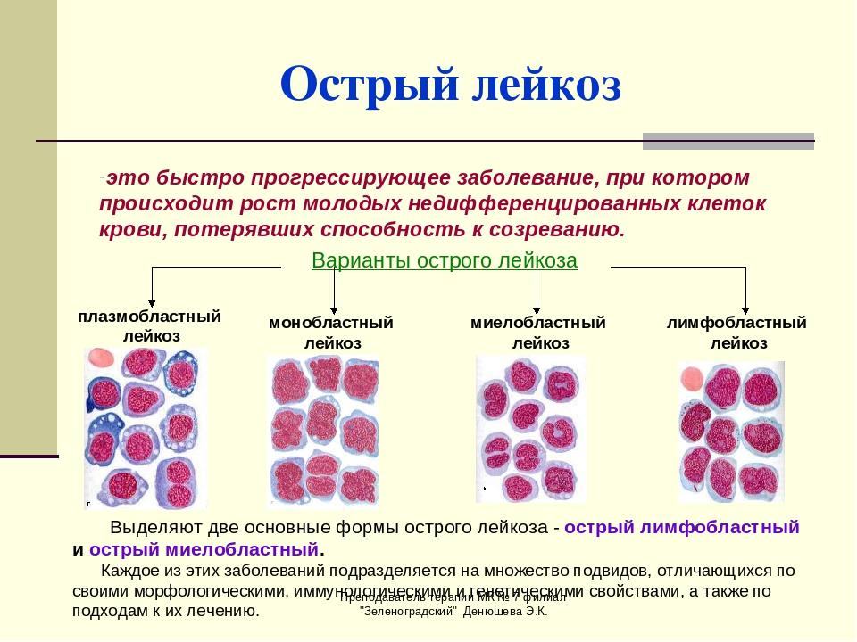 Что такое острый лимфобластный лейкоз — описание заболевания, как оно проходит и проявляется, прогноз