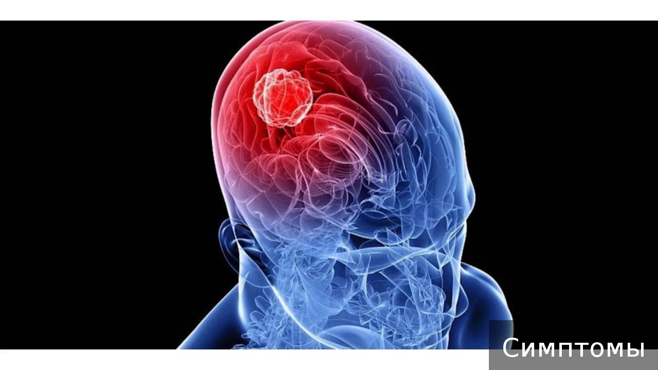 Последствия контузии головного мозга: для психики, от взрыва на войне, как поддержать челока?