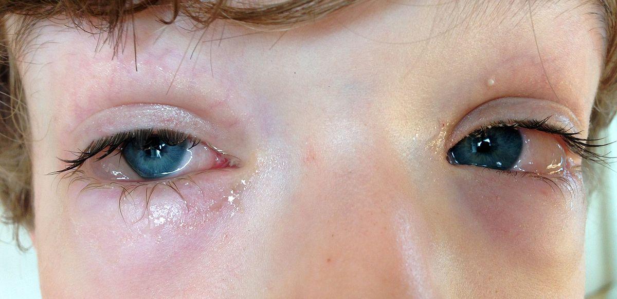 Конъюнктивит: лечение, симптомы у взрослых, причины, виды, осложнения, сколько длится, как передается