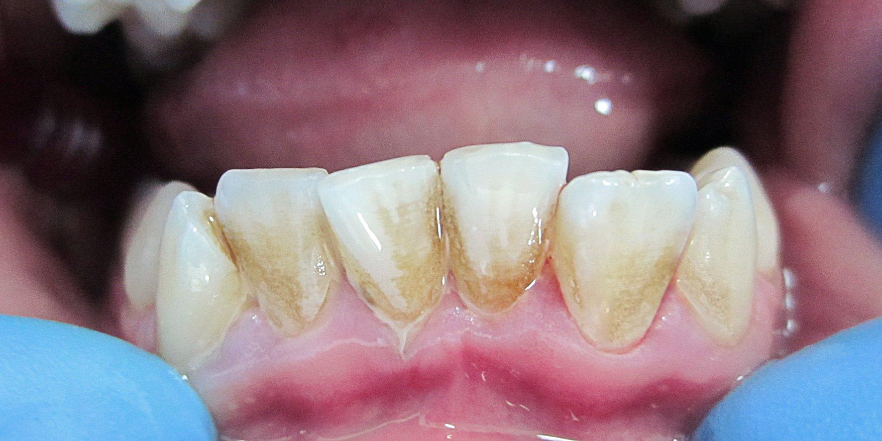 Что такое зубной камень, как он выглядит, откуда появляется и как с ним бороться, советы стоматологов