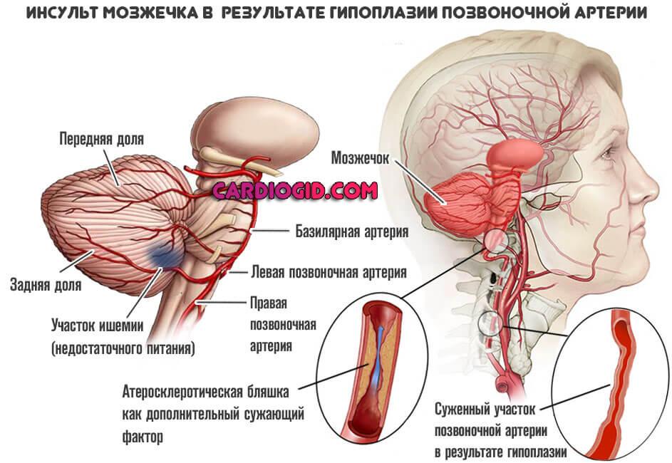 Гипоплазия левой позвоночной артерии: что это такое?