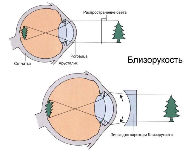 """Миопия (близорукость) высокой 3 степени: лечение - """"здоровое око"""""""