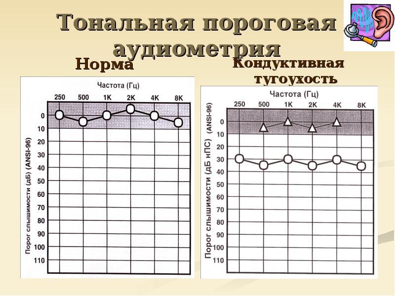 Аудиометрия - инструментальное исследование слуха