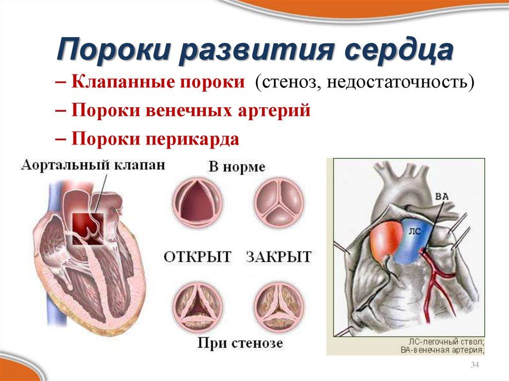 Врожденные и приобретенные пороки сердца: что это такое, описание симптомов, лечение, прогноз