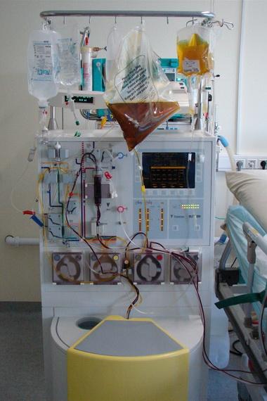 Плазмаферез крови: что это такое, центрифужный, как делается
