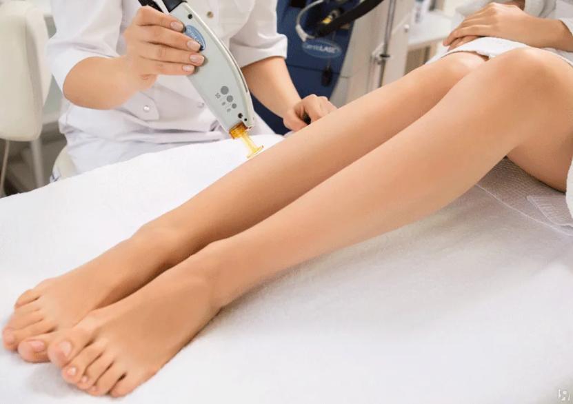 Диодная лазерная эпиляция: эффективность, противопоказания и последствия - волосовед