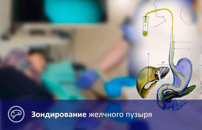 Дуоденальное зондирование - методика проведения диагностики, подготовленные мероприятия и результаты