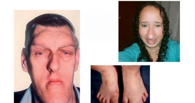 Акромегалия и гигантизм. причины, симптомы, диагностика и лечение