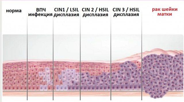 Пролиферация: с атипией клеток и без - что это, когда опасна, локализации