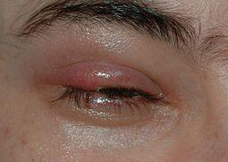 Ячмень на глазу: схема лечения в домашних условиях (отзывы, фото)