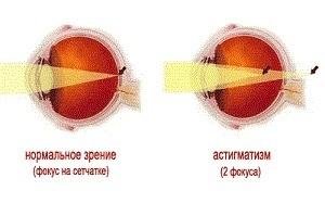 Что такое астигматизм глаз