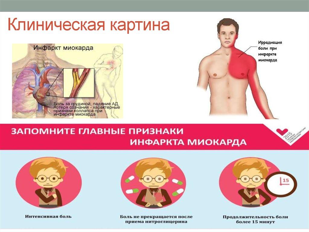 Первые признаки инфаркта миокарда. как распознать инфаркт и что делать?