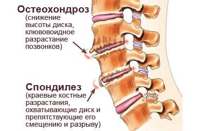 Лечение спондилеза пояснично-крестцового отдела позвоночника